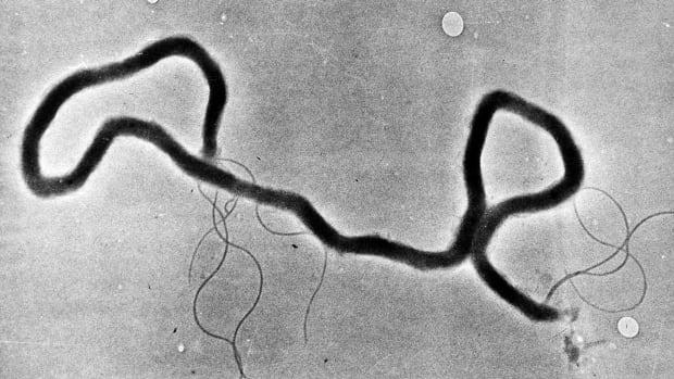Alberta'daki 'korkunç' frengi enfeksiyonu sayısı antibiyotik öncesi seviyelere ulaştı